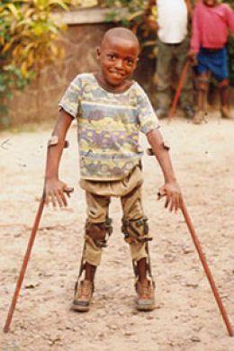 polio africa